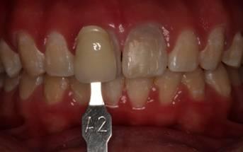 Clareamento Externo De Dente Nao Vital Mendes Revista Saude